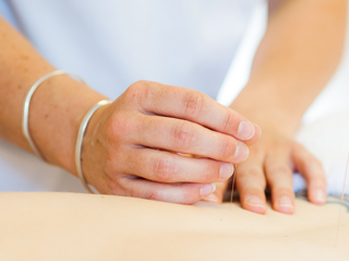 Hampshire Spine Specialists we offer two forms of Acupuncture
